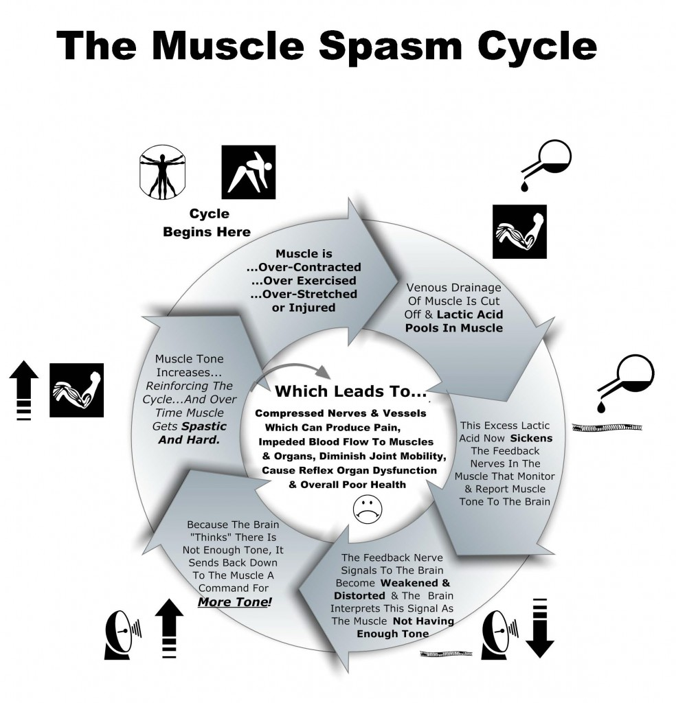 Muscle Spasm Cycle Chart